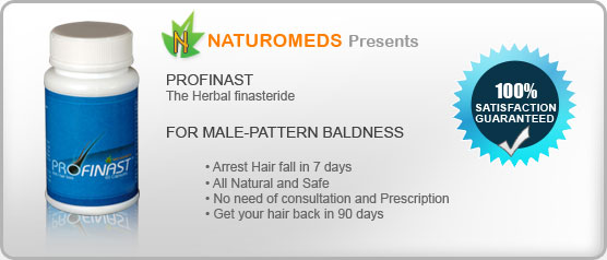 Profinast - Arrest hair fall in 7 Days